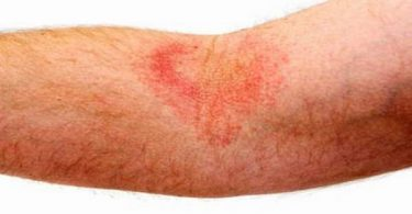 "Eczema is ""a general term for any superficial inflammatory process involving the epidermis primarily, marked early by redness and itching."