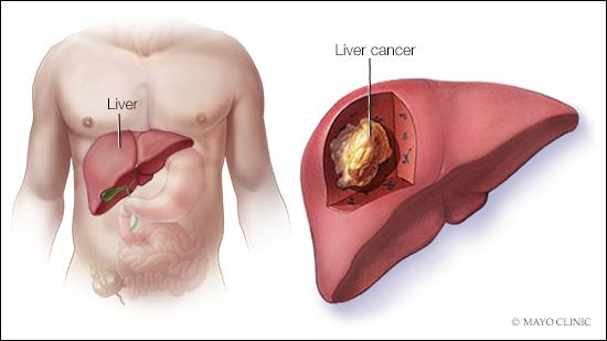staging prostate cancer and its relationship to prognosis for liver
