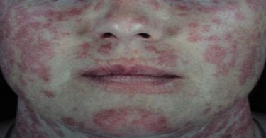 ano ang lupus, lupus symptoms, lupus wiki, lupus causes, lupus rash, lupus treatment, lupus disease, lupus nephritis