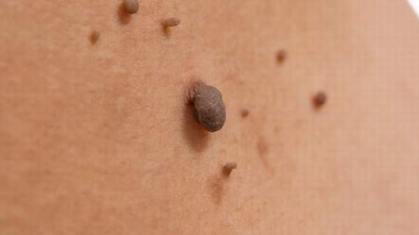 Cancerous raised moles