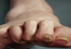 Pictures of Claw Toes