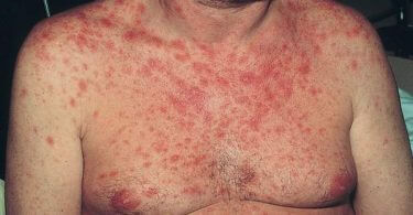 HIV rash in men