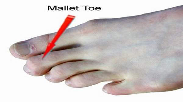 Mallet Toes