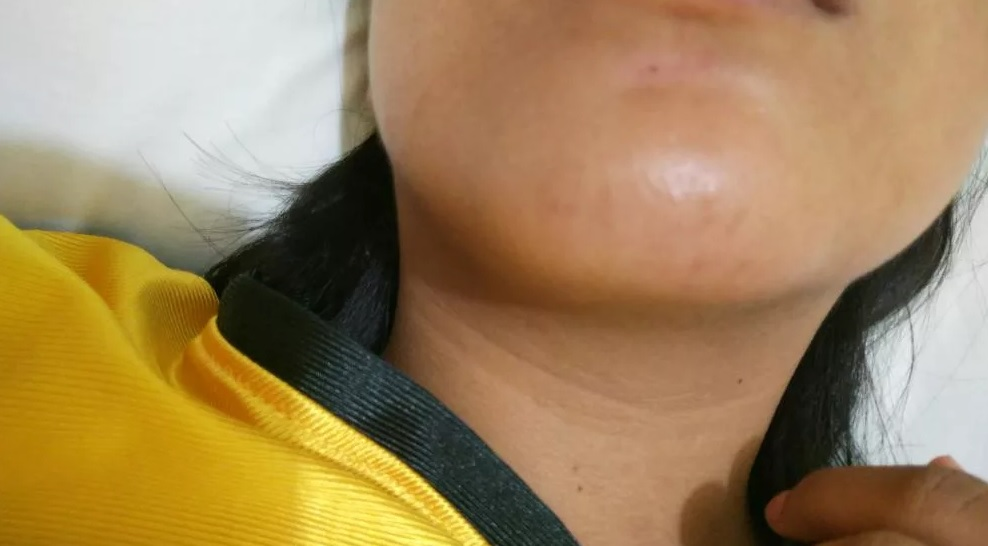 Hives on neck