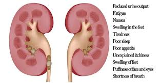 Kidney Cancer symptoms