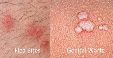 How can you tell Flea Bites from Genital Warts