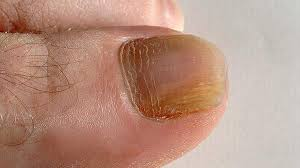 how to prevent toe nail fungus