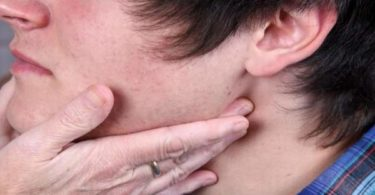 mononucleosis causes, mononucleosis treatments